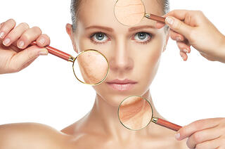 bigstock-Beauty-Concept-Skin-Aging-Ant-74080411