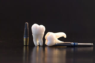 bigstock-Human-Teeth--Dental-Implant-A-5393220