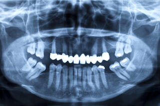 over bite jaw surgery