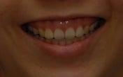 Gummy_smile_1
