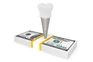 bigstock-Cost-Of-Dental-Concept-Tooth--100231823.jpg