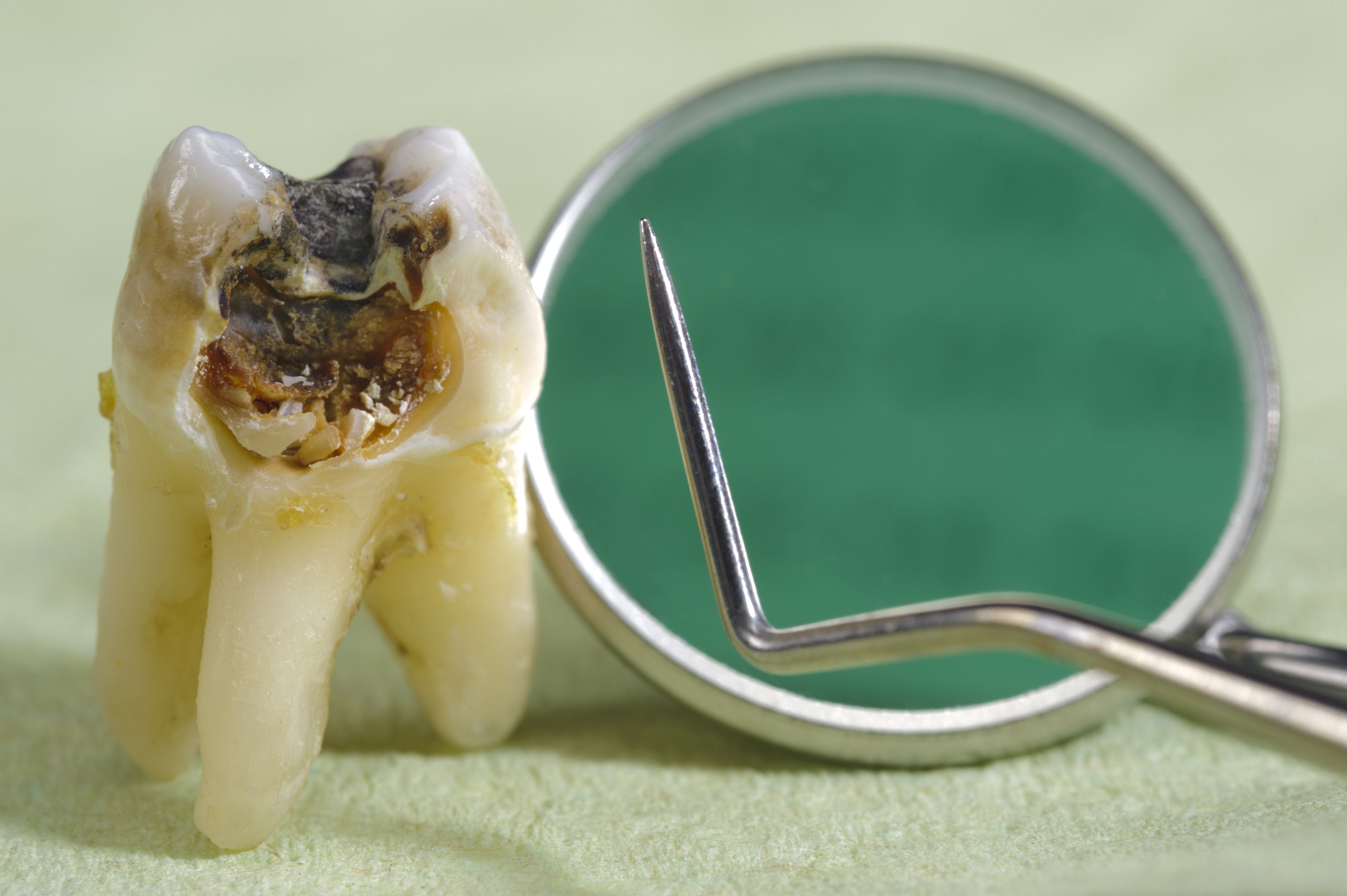 bigstock-tooth-with-caries-30344489.jpg