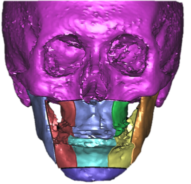 overbite_2.png