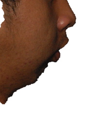 overbite_photo-1.png